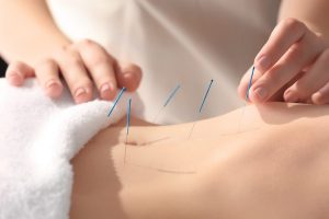 Acupuncture and IVF Treatment